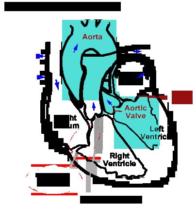Subaortic Stenosis - Mar Vista Animal Medical Center